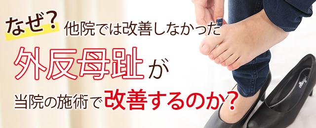 神戸 外反母趾